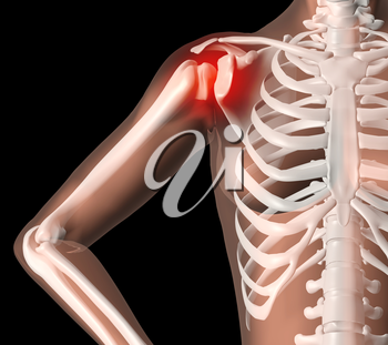 3D render of a female medical skeleton with shoulder pain