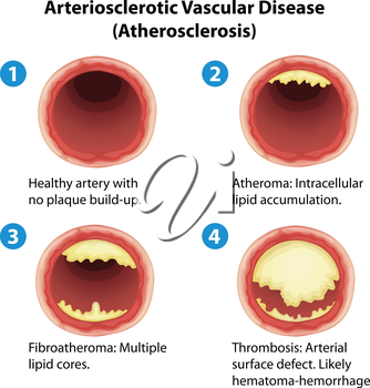 Illustration showing the process of ateriosclerosis