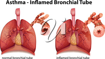 Illustration showing the inflamation of the bronchus causing asthma