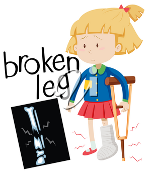 Girl with broken leg and x-ray film illustration