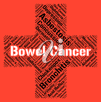 Bowel Cancer Representing Cancerous Growth And Guts