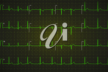 Typical human electrocardiogram, bright green graph on dark background with marks